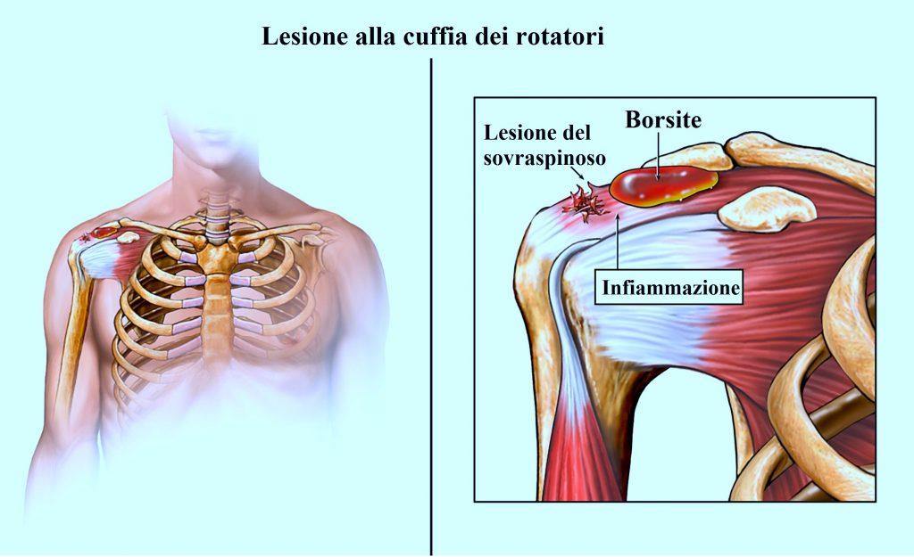 rimedi e terapie naturali per la lesione o rottura della cuffia dei  rotatori e lesione tendine 189a7e262ec7